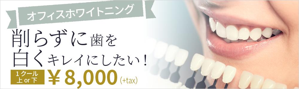 削らずに歯を白くキレイにしたい!ホワイトニング1クール8,000円~