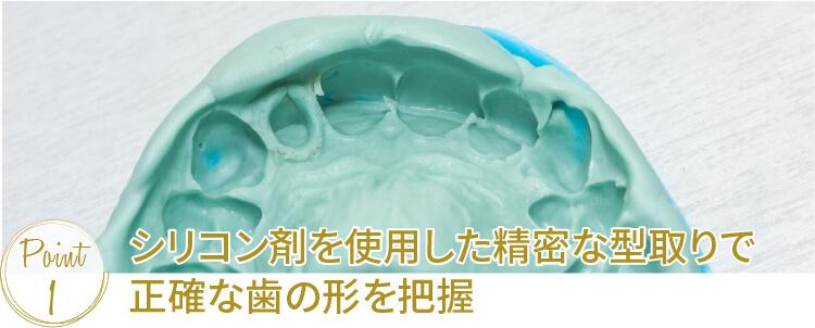 シリコン剤を使用した精密な型取りで正確な歯の形を把握