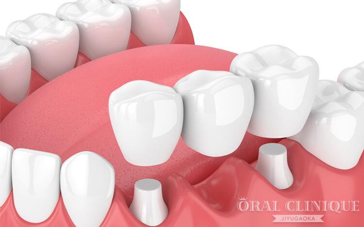 欠損歯の治療:ブリッジ