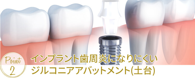 インプラント歯周炎になりにくいジルコニアアバットメント(土台)