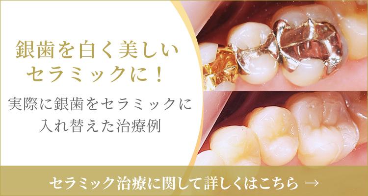 銀歯を白く美しいセラミックに!実際に銀歯をセラミックに入れ替えた治療例、セラミック治療に関して詳しくはこちら
