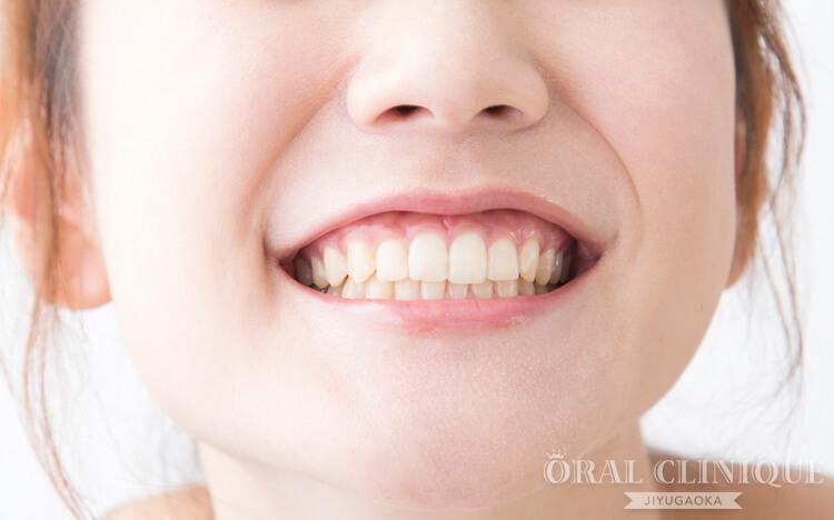 最短2回で歯並びを整えるセラミック矯正