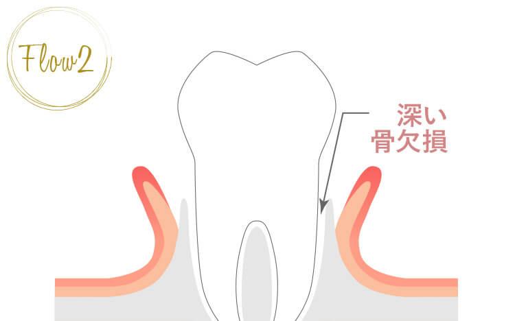 歯肉を剥離し、歯根面を清掃する