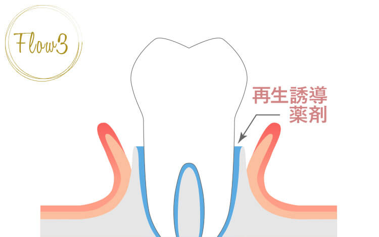 エムドゲイン等の歯周組織再生誘導剤を歯の周りに注入する