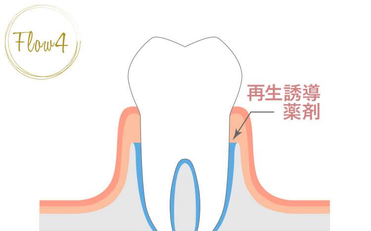歯肉を戻し、血腫を待つ。骨は半年~1年で徐々に再生していく