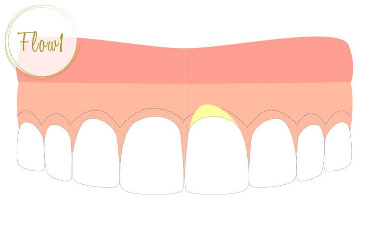 深い歯周ポケットの内面を、骨膜を残しながら切り取る