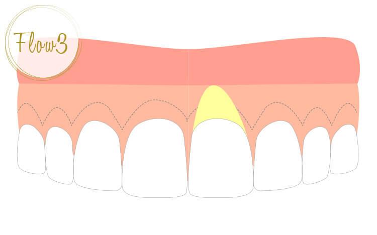 切り取った歯肉の先端を、歯槽骨の位置に合わせて根尖側に移動させて縫いつける