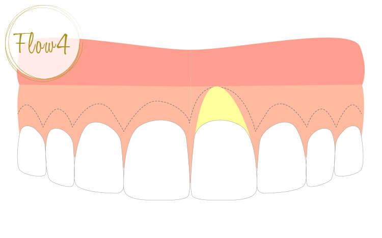 約一週間後に抜糸。歯肉は歯冠側に向かって治癒、歯周ポケットのない健康的な歯茎へと回復する